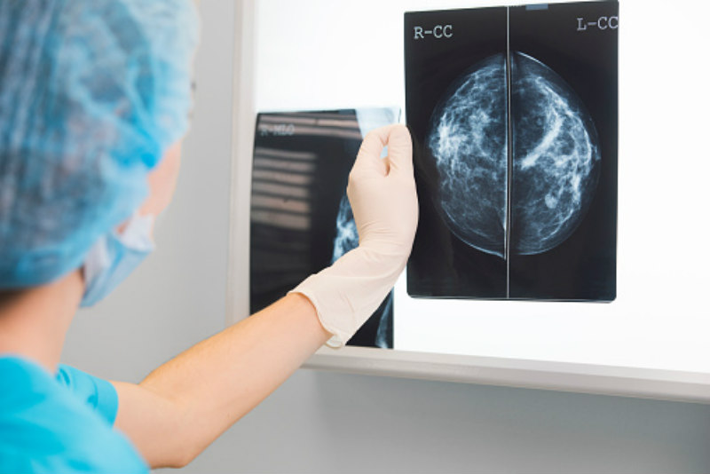 Breast After Lumpectomy And Radiation