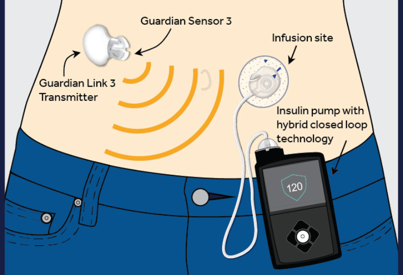 Artificial pancreas approved for use in patients 14 years and older