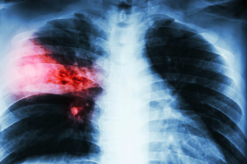 Pneumococcal disease linked to high fatality